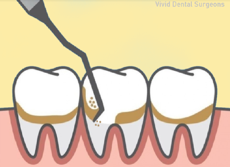 dental deep cleaning necessary