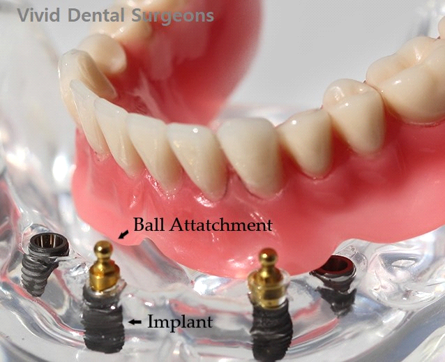 implant supported denture cost