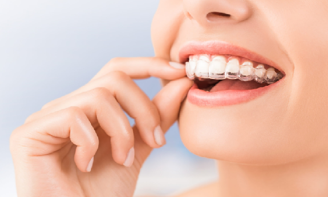 invisalign-meaning-singapore