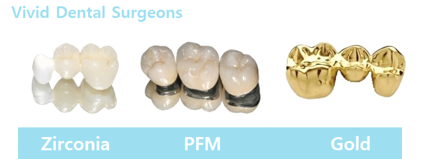 types of dental crowns and cost